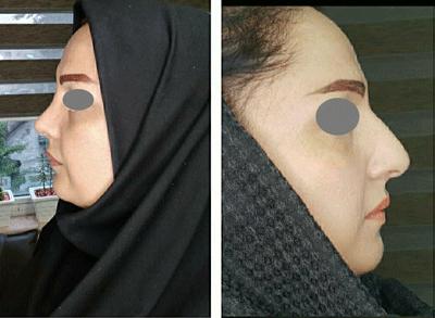 نمونه کار عمل بینی دکتر واحدی پور 1