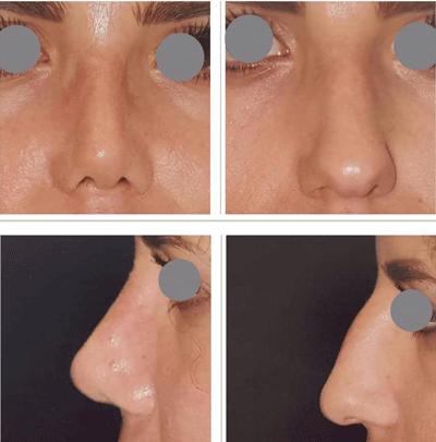 نمونه جراحی بینی دکتر لقمانی 6