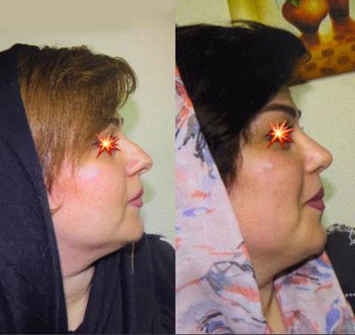 نمونه جراحی بینی دکتر ابراهیم فهیم نیا 1
