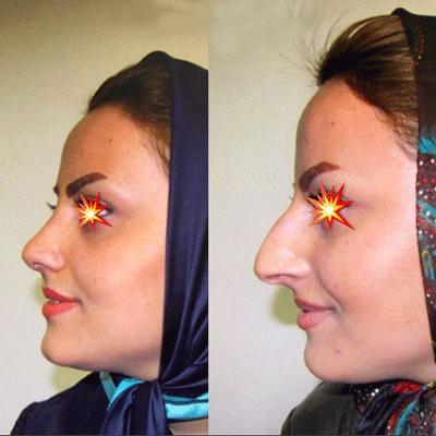 نمونه جراحی بینی دکتر ابراهیم فهیم نیا 2