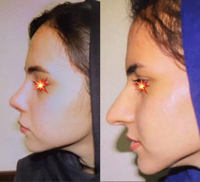نمونه جراحی بینی دکتر ابراهیم فهیم نیا 4