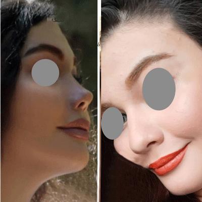 نمونه جراحی بینی دکتر حسینی اقدم 3