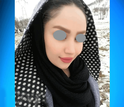 نمونه جراحی بینی دکتر مفرد 2