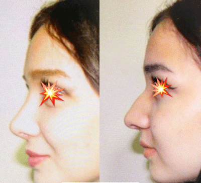 نمونه جراحی بینی دکتر ابراهیم فهیم نیا 9