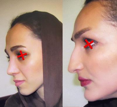 نمونه جراحی بینی دکتر ابراهیم فهیم نیا 10