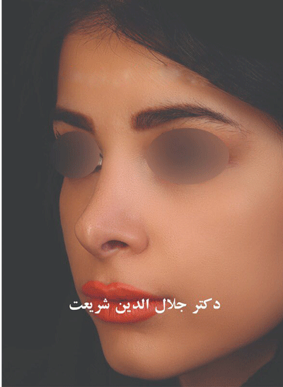 نمونه جراحی بینی دکتر جلال الدین شریعت 8