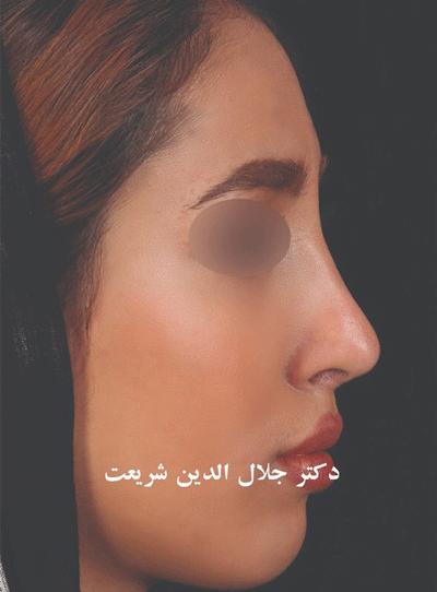 نمونه جراحی بینی دکتر جلال الدین شریعت 4