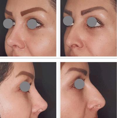 نمونه جراحی بینی دکتر لقمانی 7