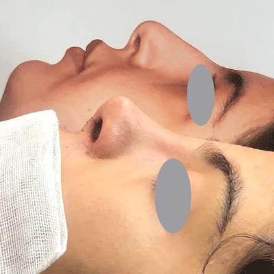 نمونه جراحی بینی دکتر ایمان محمدی 6