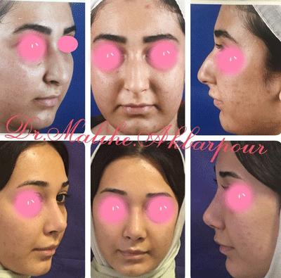 نمونه جراحی بینی دکتر ملیحه اکبرپور 1