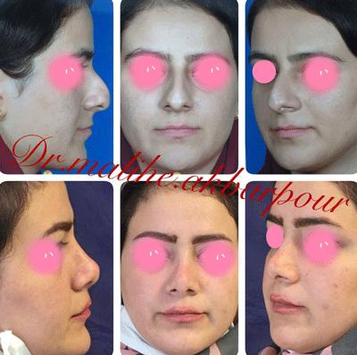نمونه جراحی بینی دکتر ملیحه اکبرپور 4