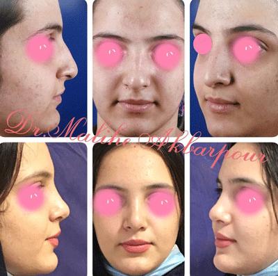 نمونه جراحی بینی دکتر ملیحه اکبرپور 5