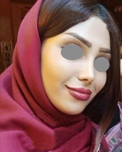نمونه جراحی بینی دکتر حسینی اقدم 1