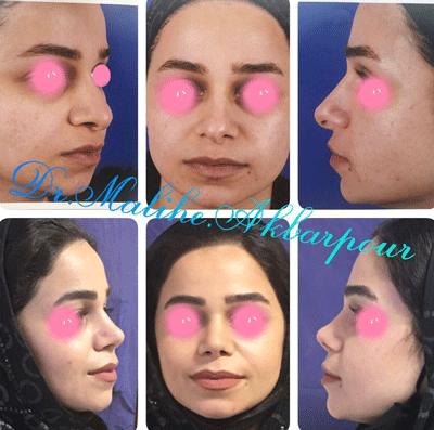 نمونه جراحی بینی دکتر ملیحه اکبرپور 7