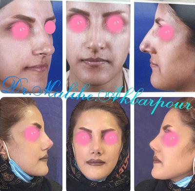 نمونه جراحی بینی دکتر ملیحه اکبرپور 8