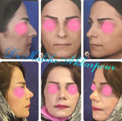 نمونه جراحی بینی دکتر ملیحه اکبرپور 9