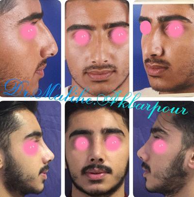 نمونه جراحی بینی دکتر ملیحه اکبرپور 10