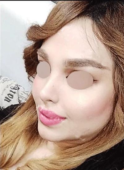 نمونه جراحی بینی دکتر نوروزی 3