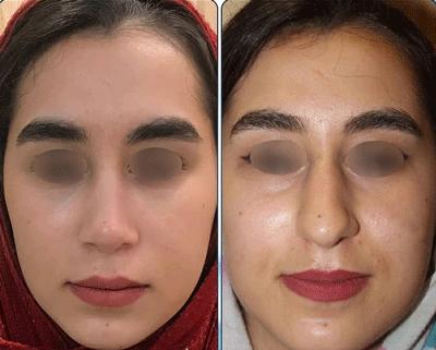 نمونه جراحی بینی دکتر نگین نجمی 4