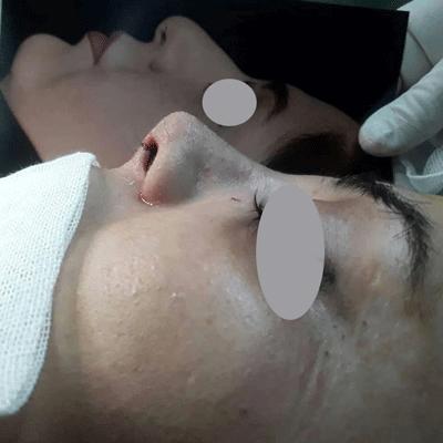 نمونه جراحی بینی دکتر ایمان محمدی 7