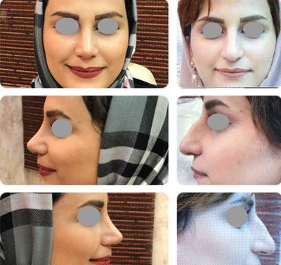 نمونه جراحی بینی دکتر لاله ترابی 5