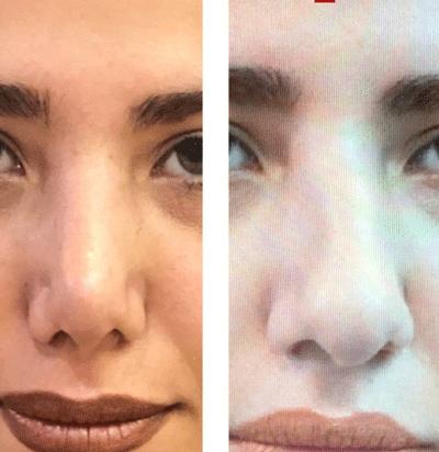 نمونه جراحی بینی دکتر لاله ترابی 6