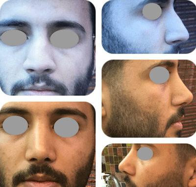 نمونه جراحی بینی دکتر لاله ترابی 8