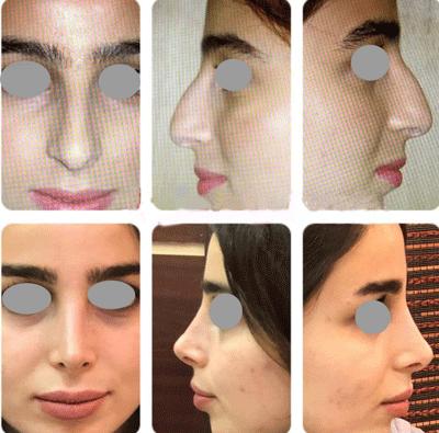 نمونه جراحی بینی دکتر لاله ترابی 9