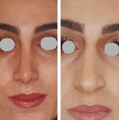 نمونه جراحی بینی دکتر لقمانی 8