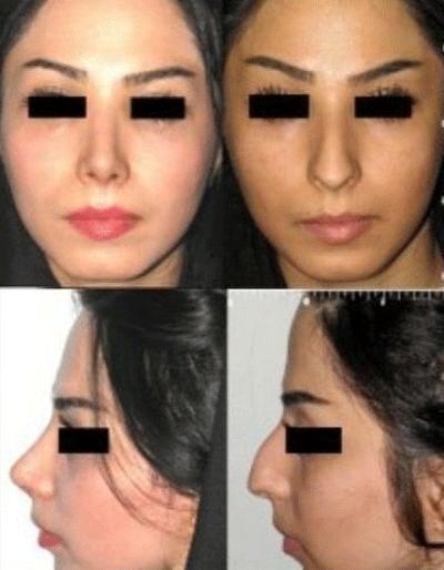 نمونه جراحی بینی دکتر شهرام فاضلی 1