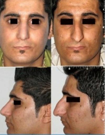 نمونه جراحی بینی دکتر شهرام فاضلی 4