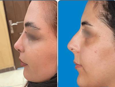 نمونه جراحی بینی دکتر نگین نجمی 2