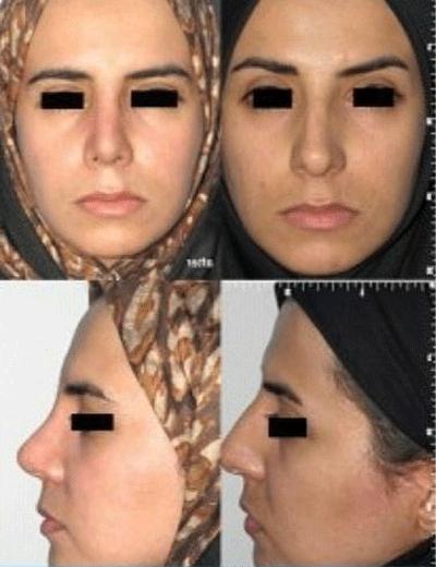 نمونه جراحی بینی دکتر شهرام فاضلی 2