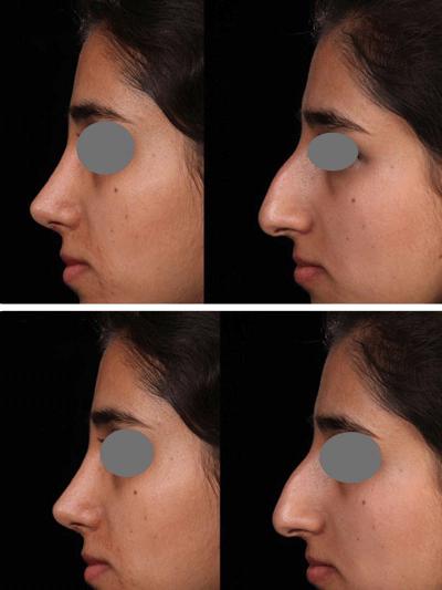 نمونه جراحی بینی دکتر شهرام فاضلی 3