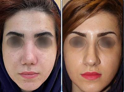 نمونه جراحی بینی دکتر نگین نجمی 1