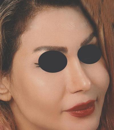 نمونه جراحی بینی دکتر جلال الدین شریعت 2