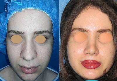 نمونه جراحی بینی دکتر مفرد 4