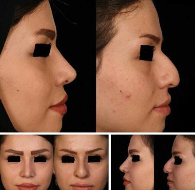 نمونه جراحی بینی دکتر شهرام فاضلی 5