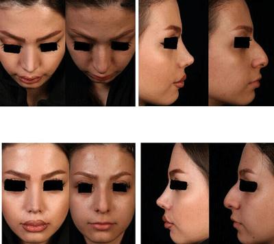 نمونه جراحی بینی دکتر شهرام فاضلی 6