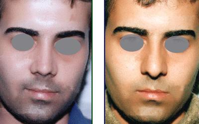 نمونه جراحی بینی دکتر اسلامیان 4