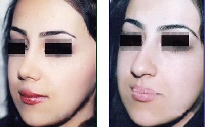 نمونه جراحی بینی دکتر اسلامیان 3