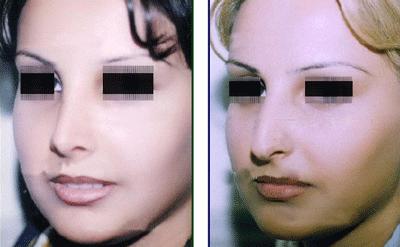 نمونه جراحی بینی دکتر اسلامیان 2