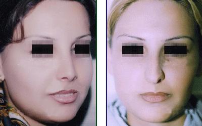نمونه جراحی بینی دکتر اسلامیان 1