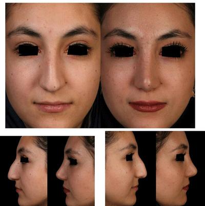 نمونه جراحی بینی دکتر شهرام فاضلی 9
