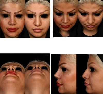 نمونه جراحی بینی دکتر شهرام فاضلی 10