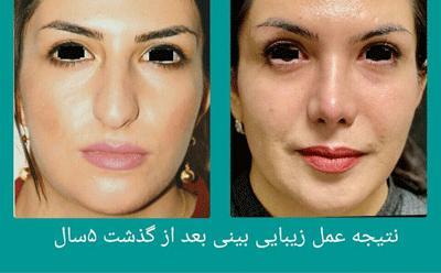 نمونه جراحی بینی دکتر علوی راد 3