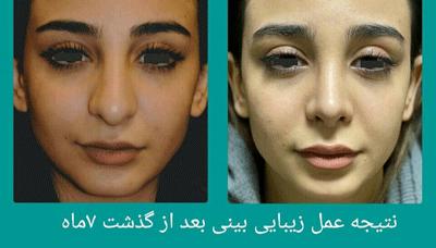 نمونه جراحی بینی دکتر علوی راد 2