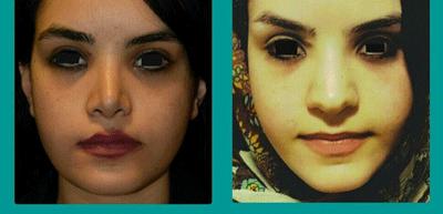 نمونه جراحی بینی دکتر علوی راد 10