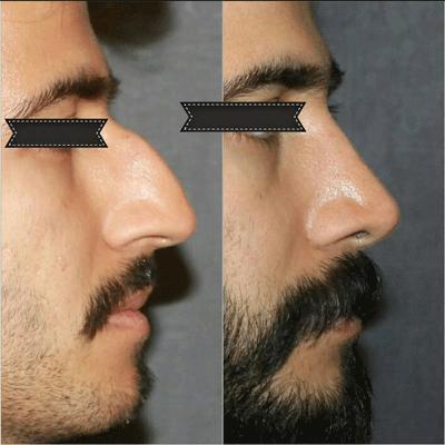 نمونه جراحی بینی دکتر فیروزه ای 11