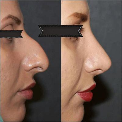 نمونه جراحی بینی دکتر فیروزه ای 10